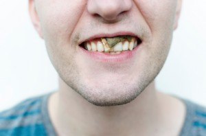 Your Fort Worth Dentist Recommends Giving up Smokeless