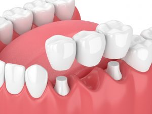 Dental crowns fitting over natural teeth